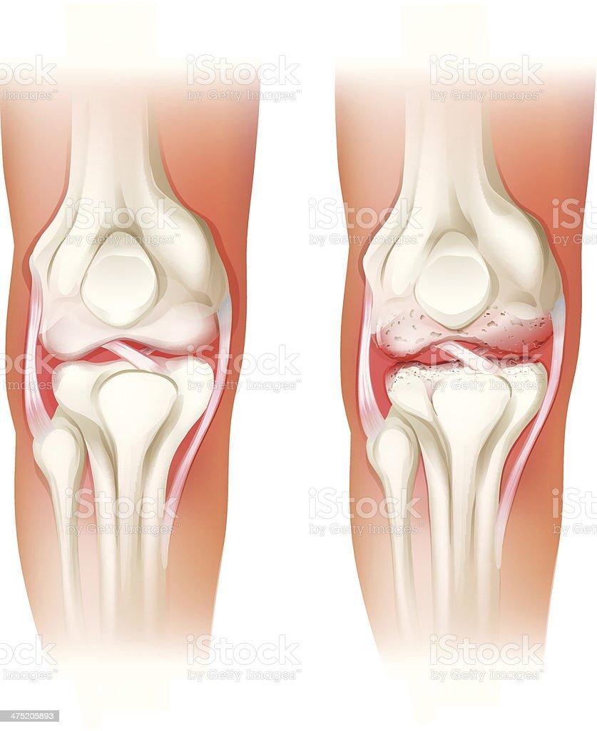 Human knee arthritis vector art illustration