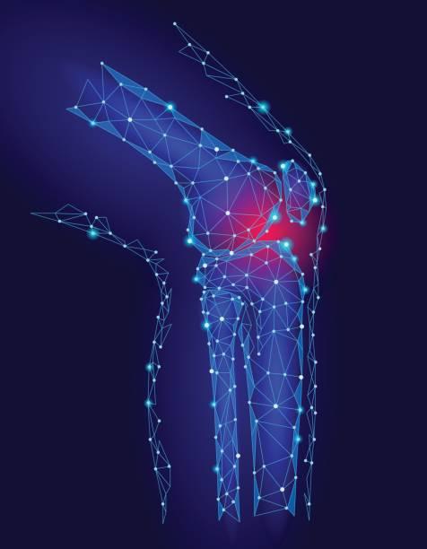 ilustrações, clipart, desenhos animados e ícones de modelo 3d conjunta do joelho humano ilustração do vetor. baixa poli projeto futura tecnologia cura tratamento da dor. fundo azul e vermelho lesão homem corpo perna medicina modelo - ortopedia