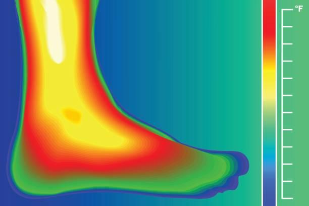menschliches bein. infrarot-thermograph mit temperaturskala. infrarot-energie-scan ist-temperatur. - infrarotfotografie stock-grafiken, -clipart, -cartoons und -symbole