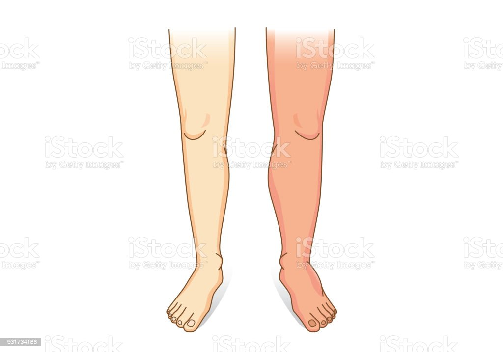Human Leg swelling in front view. vector art illustration