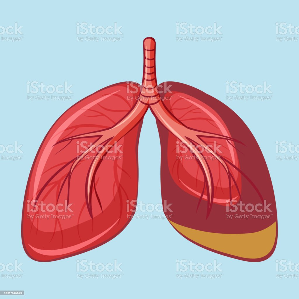 Human Lung with Pleural Mesothelioma vector art illustration