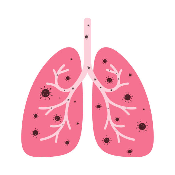 human lungs with coronavirus human lungs with coronavirus human lung stock illustrations