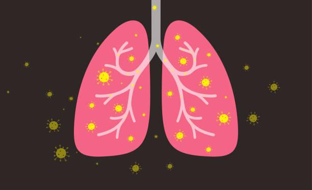 stockillustraties, clipart, cartoons en iconen met menselijke longen met coronavirus - longen