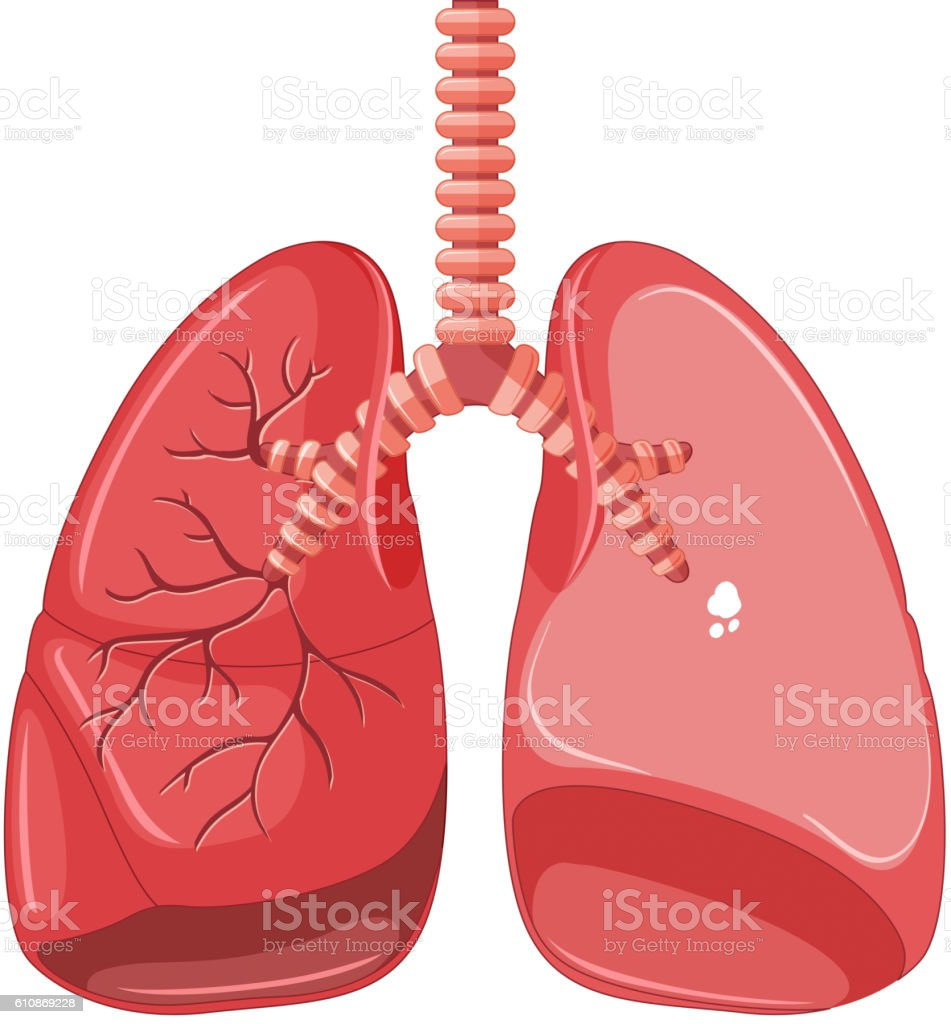 Human Lungs With Tuberculosis Stock Vector Art More Images Of