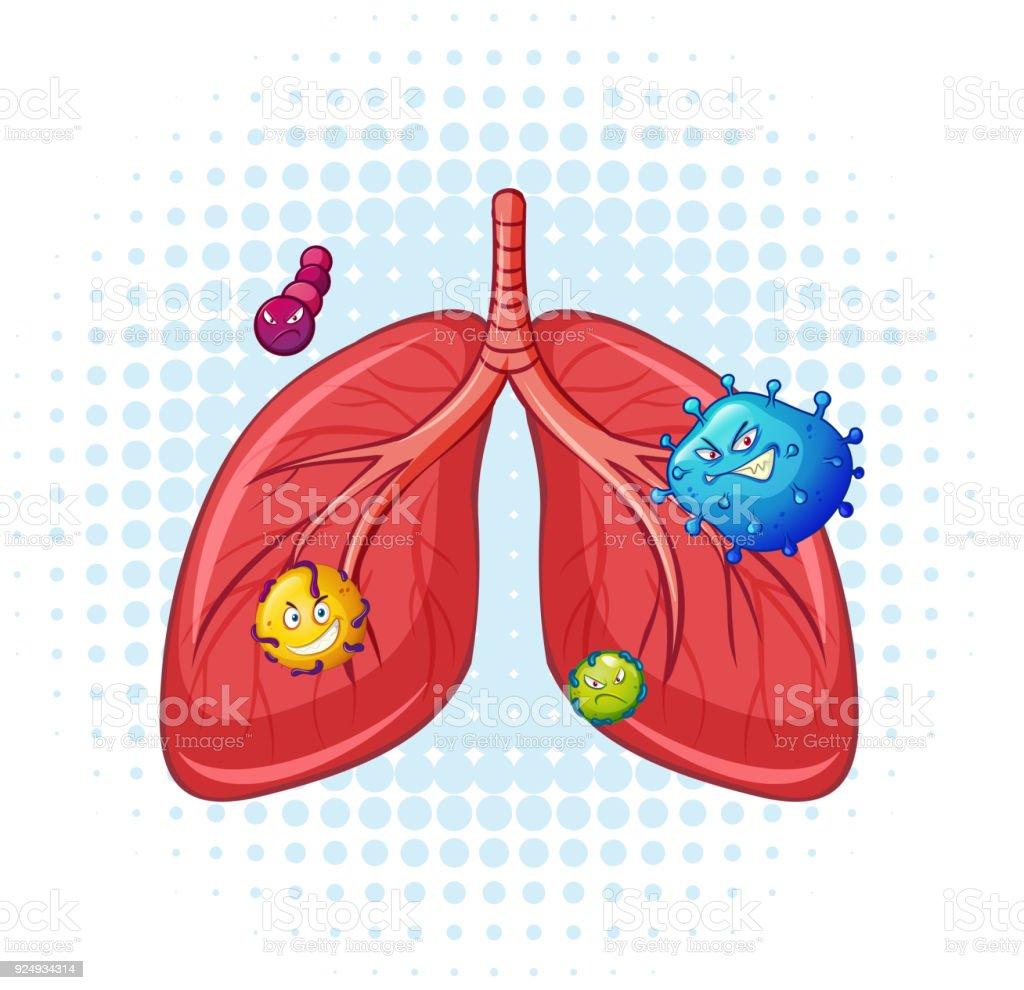 Ilustración de Pulmones Humanos Con Virus y más banco de imágenes de ...