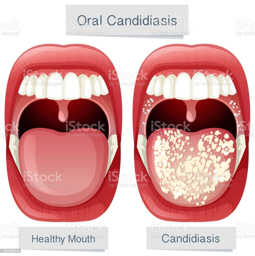 Menschlichen Mund Anatomie Orale Candidiasis Stock Vektor Art und ...