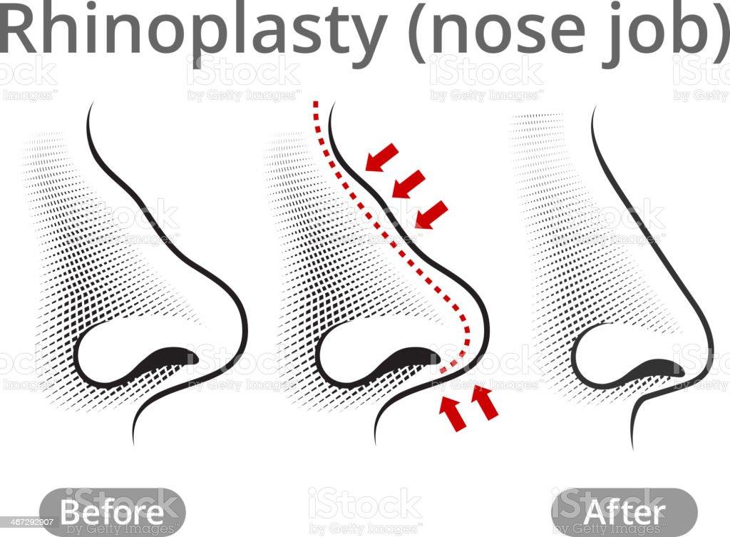 Human Nose Job Before & After vector art illustration