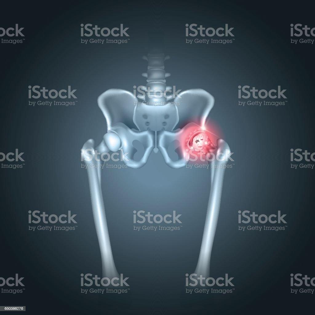 Human pelvis hip pain vector art illustration