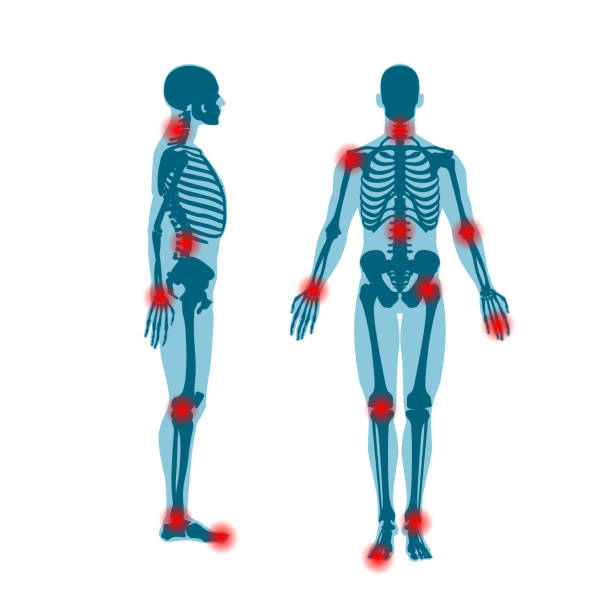Human skeleton front and side view. Men anatomy illustration on white background with a body silhouette Human skeleton front and side view with pain rings on joints. Men anatomy illustration on white background with a body silhouette. Vector illustration chronic illness stock illustrations