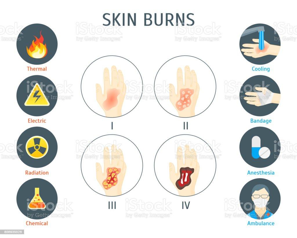 Pele humana queima infográfico cartão Poster. Vector - ilustração de arte em vetor