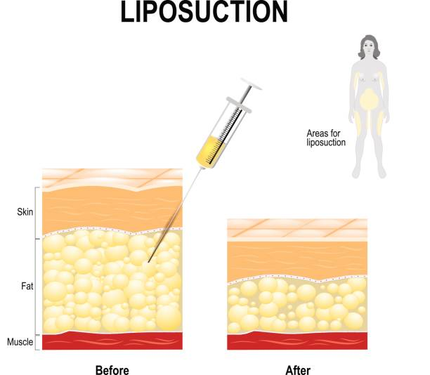 Human Skin layer before and after Liposuction Liposuction process and areas for lipo. cosmetic surgery for remove fat from the human body. syringe with fat and the Human Skin layer before and after Liposuction adipose tissue stock illustrations