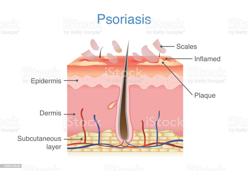 human skin layer when plaque psoriasis signs and symptoms appear   royalty-free human skin