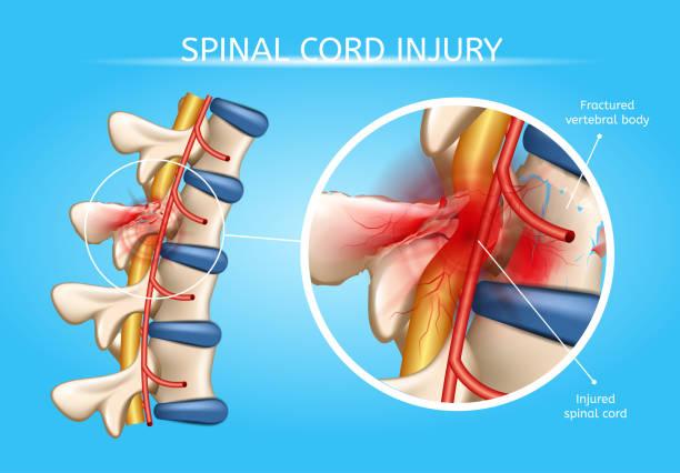 illustrazioni stock, clip art, cartoni animati e icone di tendenza di human spinal cord injury anatomical vector scheme - scheda clinica