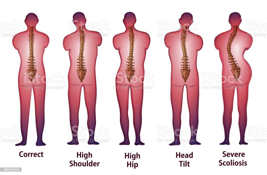 Human Spine Posture Back View Stock Vector Art More Images Of