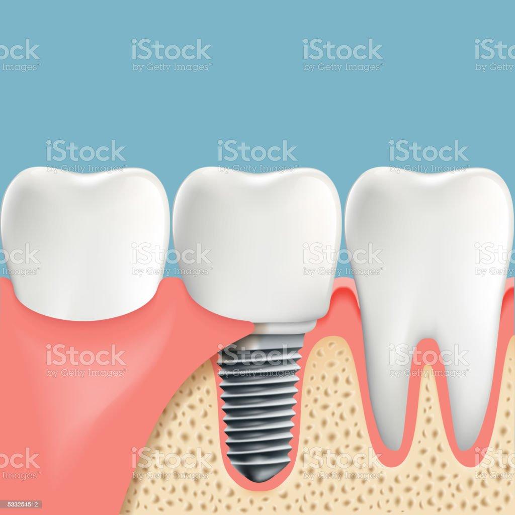 Ilustración de Diente Humano E Implante Dental Anatomía De La ...