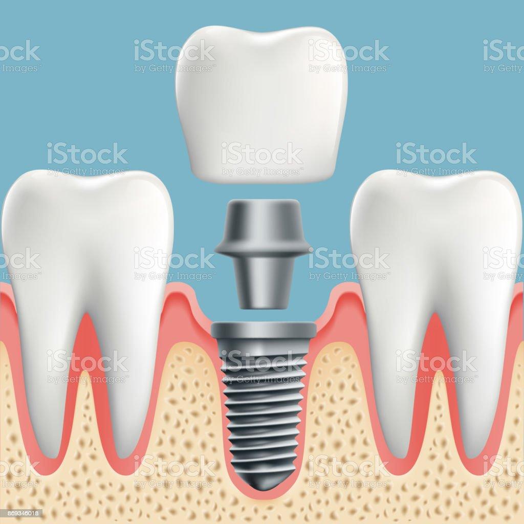 Ilustración de Los Dientes Humanos E Implantes Dentales y más banco ...