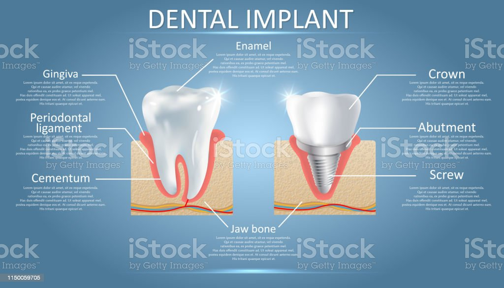 Human Tooth And Dental Implant Vector Educational Poster