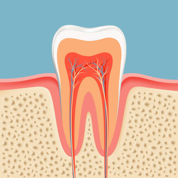 stockillustraties, clipart, cartoons en iconen met human tooth in a cut - dentine