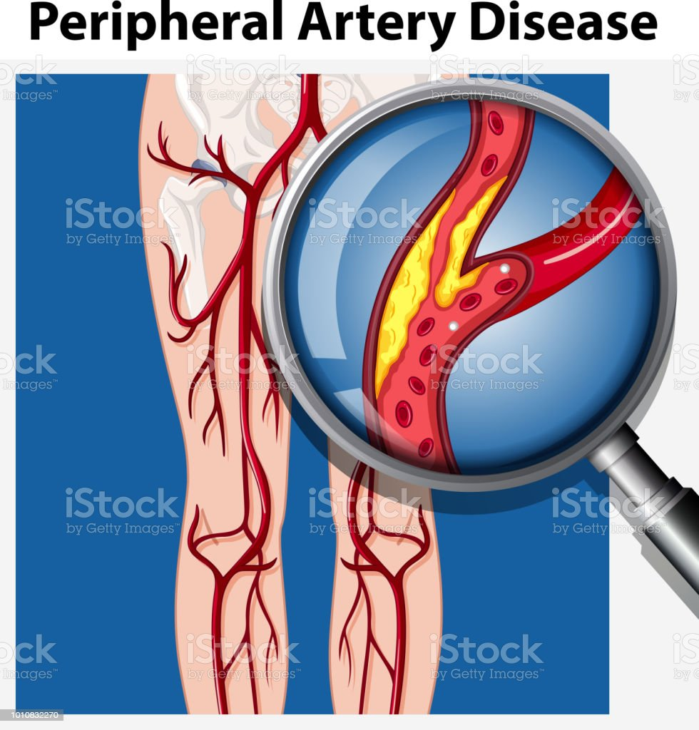 Human with Peripheral Artery Disease vector art illustration
