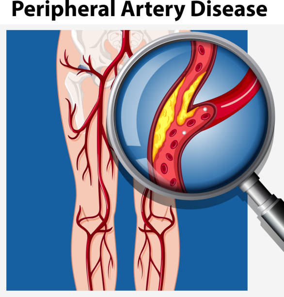 human with peripheral artery disease - болезнь stock illustrations