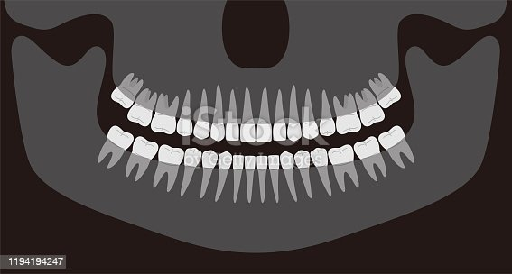 human X-ray picture of teeth, vector illustration