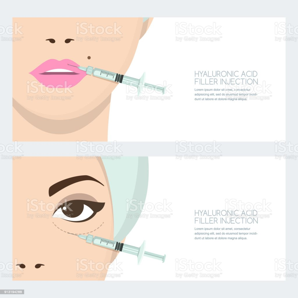 Hyaluronic acid facial injection, vector banner design. Lips, eyes periorbital filler injection. Cosmetology, anti-aging vector art illustration