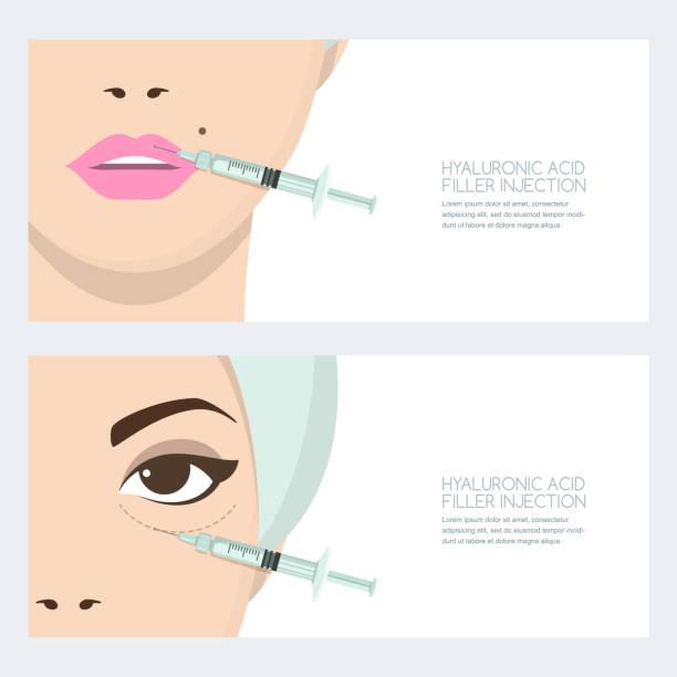 ilustrações, clipart, desenhos animados e ícones de injeção de ácido hialurônico facial, vector bandeira projeto. lábios, injeção de enchimento olhos periorbital. cosmetologia, antienvelhecimento - tratamentos de beleza