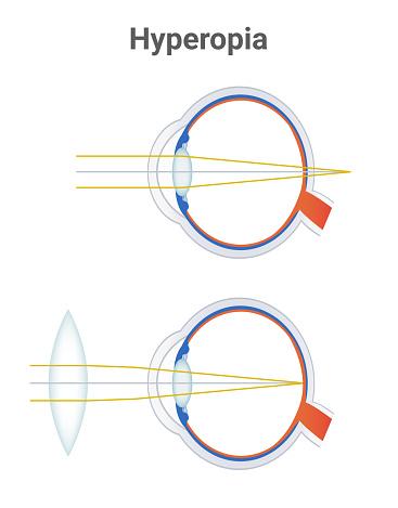 Hypermetrópia - Távollátás