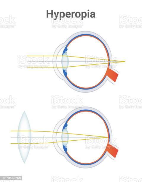 Távollátás (hypermetropia) • hipnotizor.hu