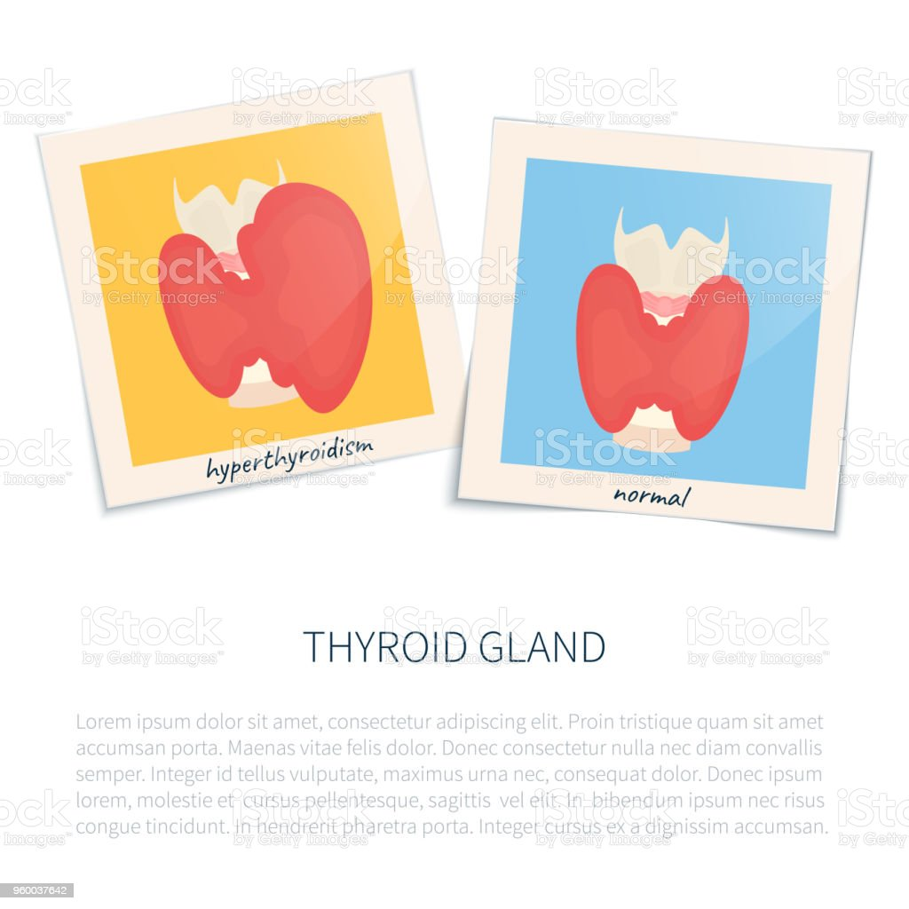 Hyperthyroidism and healthy thyroid gland векторная иллюстрация