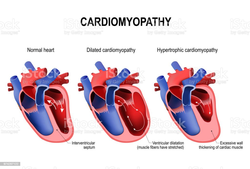 hypertrophic cardiomyopathy, dilated cardiomyopathy and healthy vector art illustration