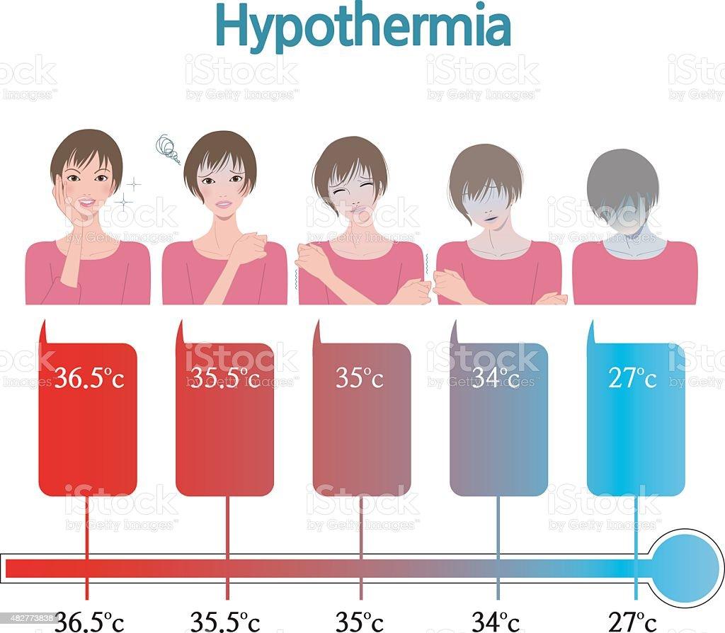 低体温症 - 2015年のベクターア...