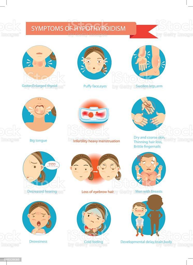 Hypothyroidism vector art illustration