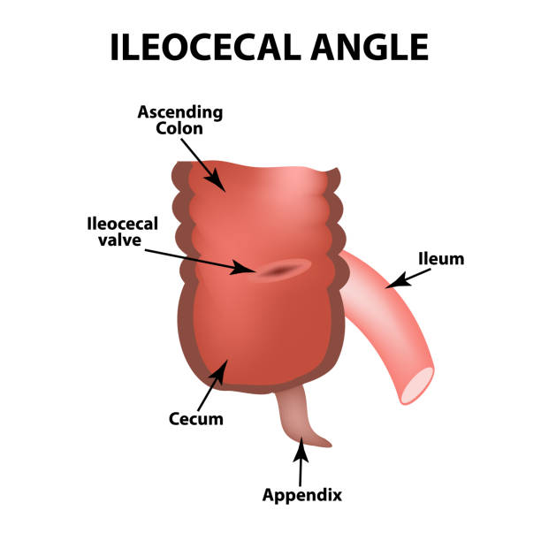 Ileocecal angle. Ileocecal valve. Bauginiev s damper. The ileum, the Cecum, the Apendix. Colon. Infographics. Vector illustration on isolated background. vector art illustration