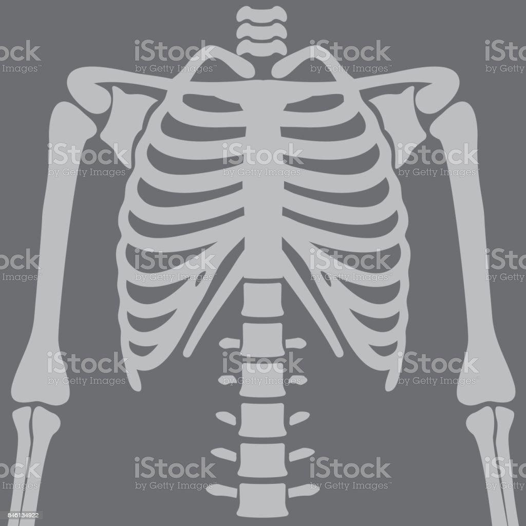Illustration Chest X-rays
