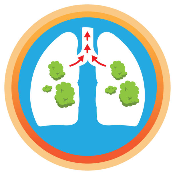 illustration depicts a lung with phlegm, mucus being spelled. ideal for health and institutional information - phil spector stock illustrations