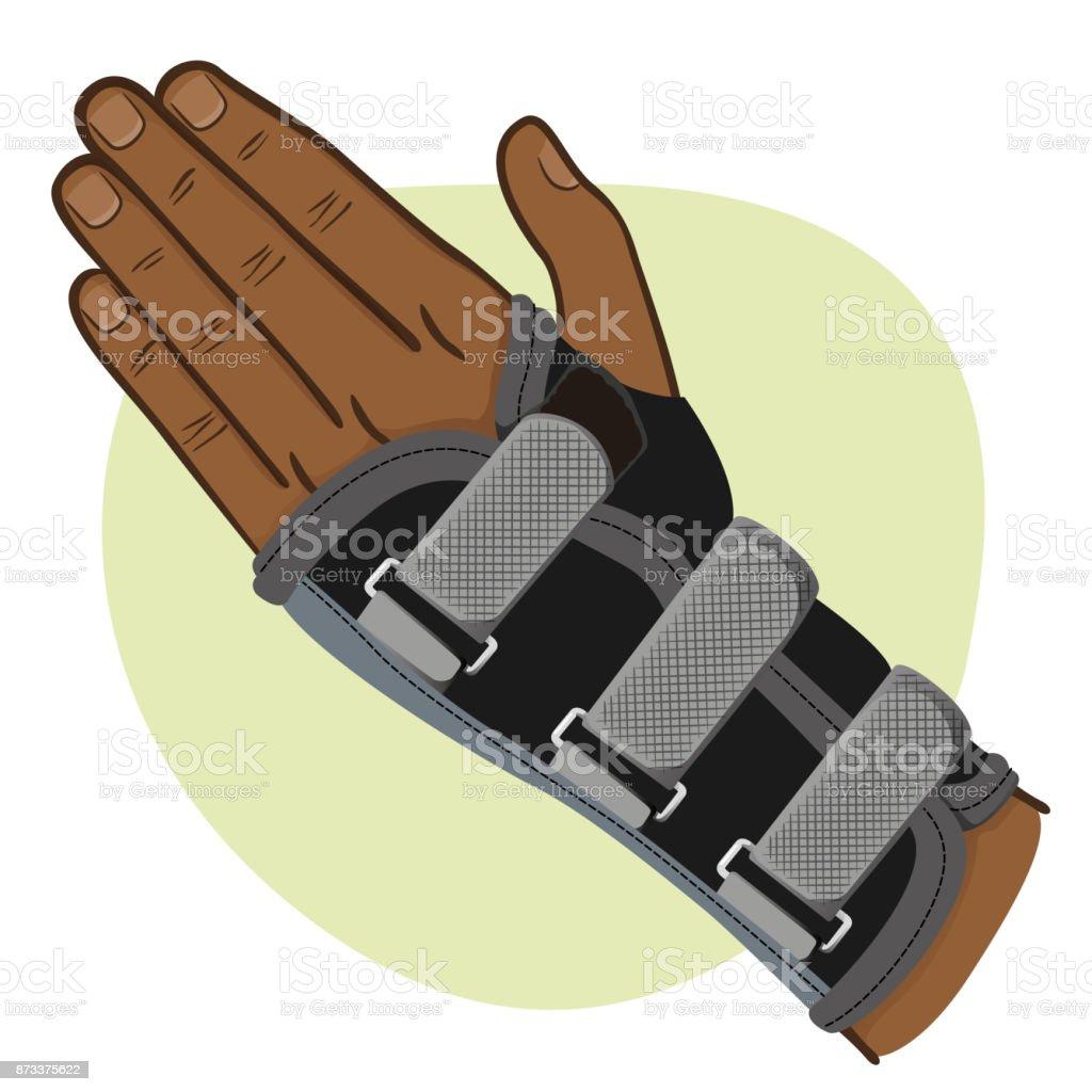 Abbildung Zeigt Ein Handgelenk Hand Sehnenscheidenentzündung ...