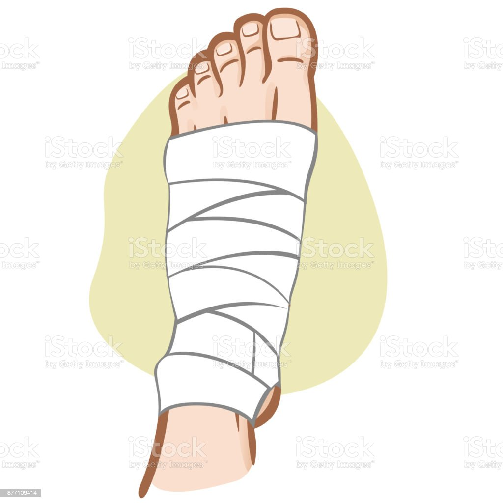 Illustration Of Firs Aid Person Caucasian Bandaged Foot Top View ...