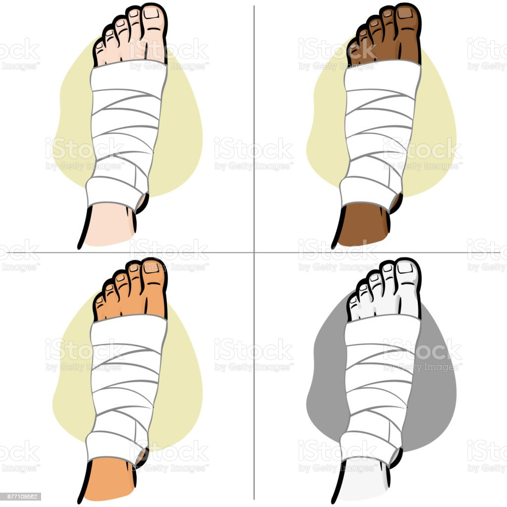 Illustration Of Firs Aid Person Ethnicity Bandaged Foot Top View ...