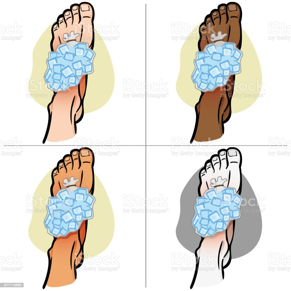 Illustration Of Firs Aid Person Ethnicity Foot With Ice Bag Top View ...