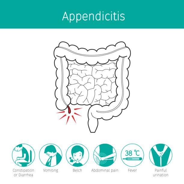 Illustration Of Human Intestine, Outline And Appendicitis Symptom Icons vector art illustration