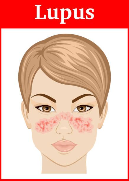 illustrazioni stock, clip art, cartoni animati e icone di tendenza di illustration of lupus - irritazione