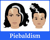 Illustration of Piebaldism in an adult and a child