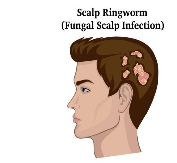 Illustration of Scalp Ringworm vector art illustration