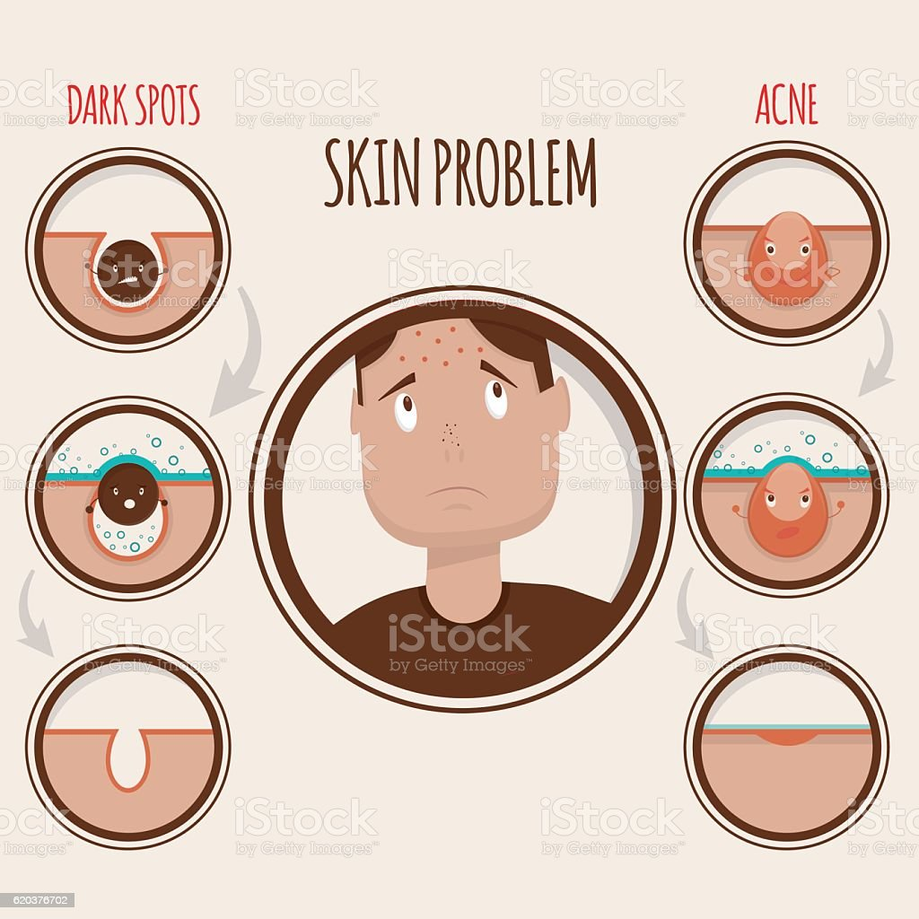 illustration of skin problems illustration of skin problems - arte vetorial de stock e mais imagens de acne royalty-free