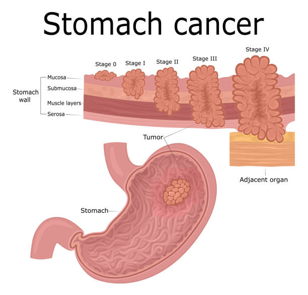 Illustration of stomach cancer Five stages of the development of oncological disease - cancer of the stomach metastasis stock illustrations