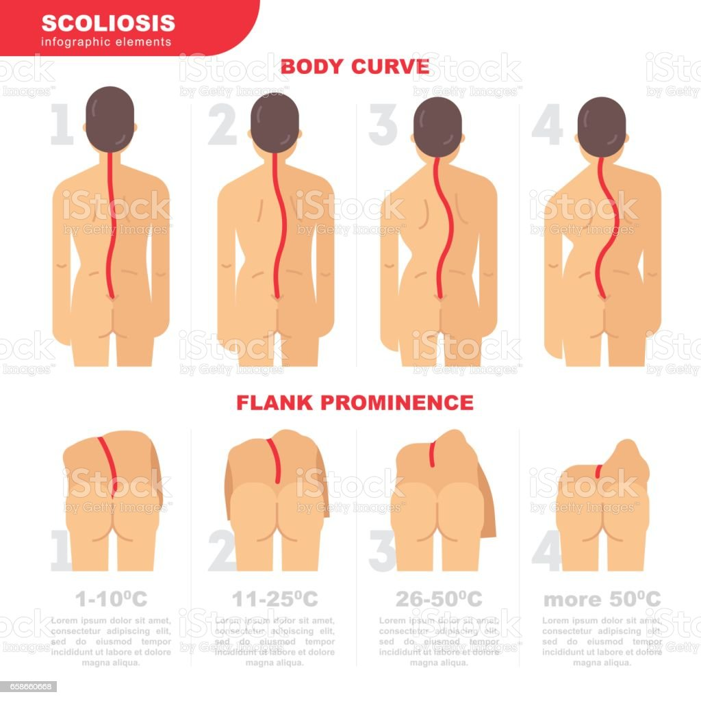 Illustration of the back with scoliosis 4 degrees vector flat design. Scoliosis infographic elements. Back curves and visual assessment scale of scoliosis and violation of posture, stock vector vector art illustration