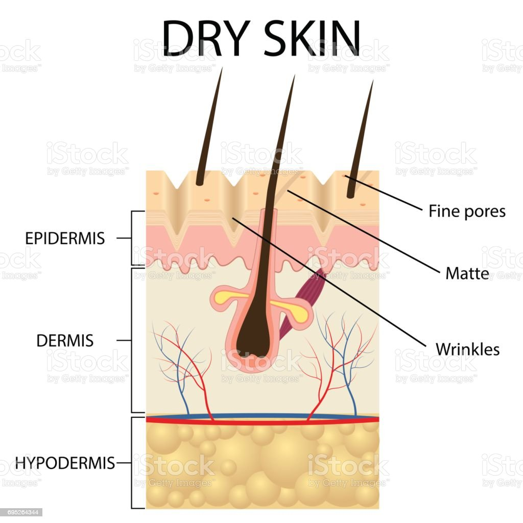 Illustration Of The Layers Of Dry Skin Stock Vector Art & More ...
