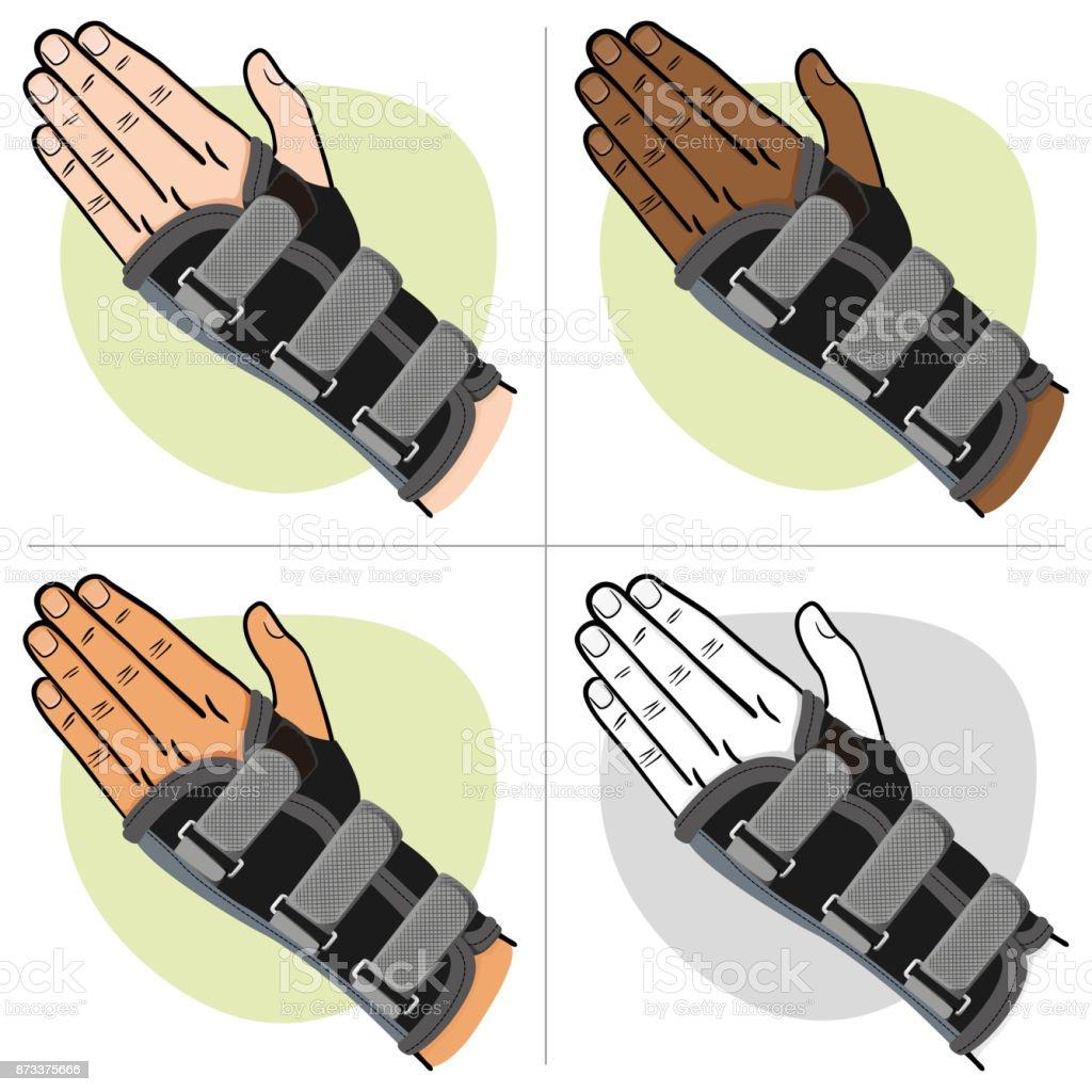 Abbildung Stellt Eine Hand Mit Handgelenk Sehnenentzündung ...