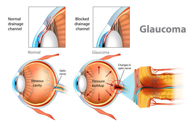 illustration showing open-angle glaucoma. - сетчатка stock illustrations